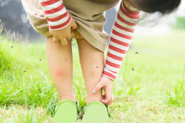Ett barn som kliar sig på benet och är omringat av myggor