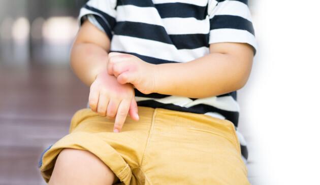 Ett barn med rosiga händer av att ha kliat sig