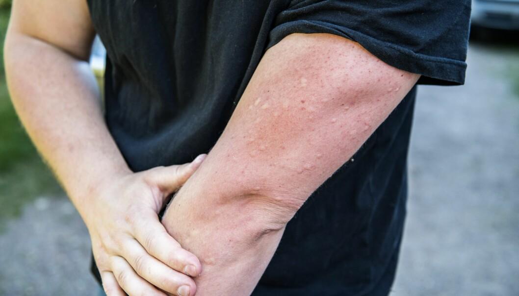Mygg- eller knottbett på en manlig arm.