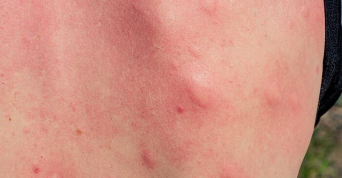 En rygg full av myggbett.