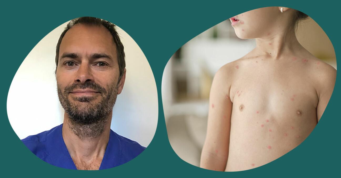 barnläkare om vattkoppor
